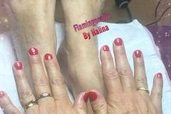 handen-en-voeten-rood